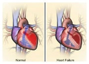 How the heart and body compensate in heart failure