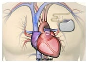 How medical devices work in heart failure
